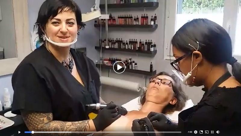 [Vidéo] Reconstruction bilatérale d'aréoles mammaires effet 3D