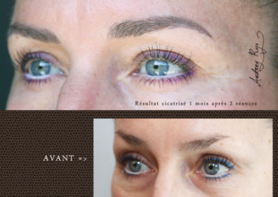 maquillage-permanent-poils-AudreyRojo1
