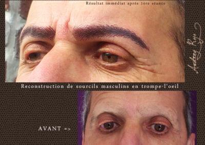 reconstruction-sourcils-homme