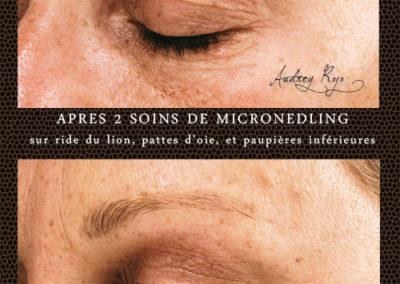 microneedling-antirides1-AudreyRojo