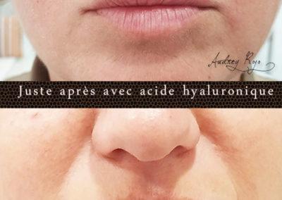 Hyaluronpen-volume-lèvres1-AudreyRojo