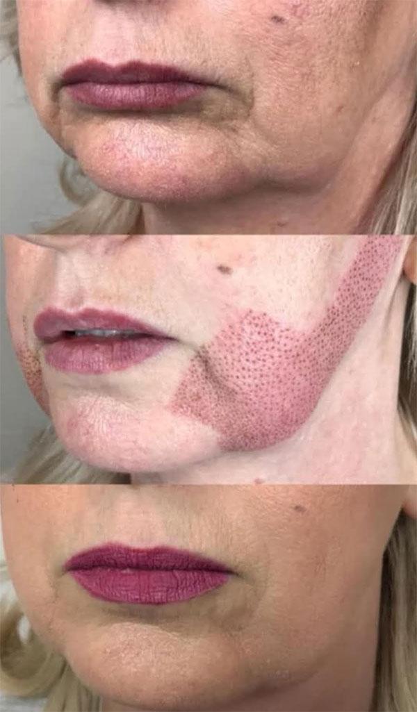 Le plasma pen pour ovale du visage