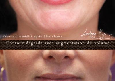 maquillage-permanent-levres-castres81
