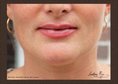 maquillage-permanent-levres-rabastens81
