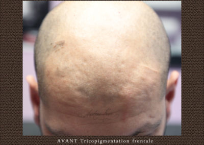 avant-tricopigmentation-temporale-frontale-tarn-lavaur