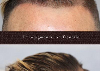 tricopigmentation-frontale-face-occitanie-toulouse