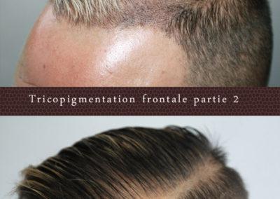 tricopigmentation-frontale2-occitanie-toulouse