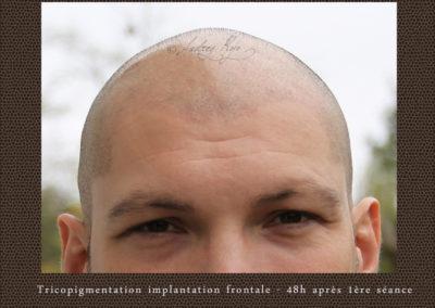tricopigmentation-temporale-occitanie-81
