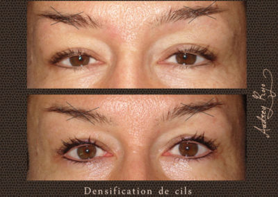 Densification de cils