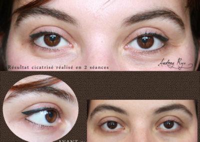 Eyeliner cicatrisé après 2 séances